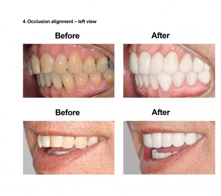 Cosmetic Dentistry and Rehabilitation Smiles Peru (6)