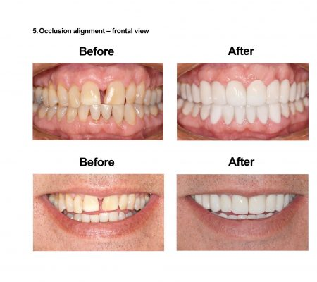 Cosmetic Dentistry and Rehabilitation Smiles Peru (7)