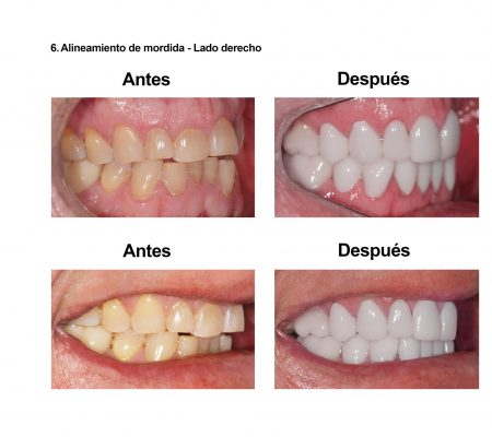 Estetica Dental Smiles Peru Carillas (2)