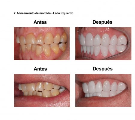 Estetica Dental Smiles Peru Carillas (3)