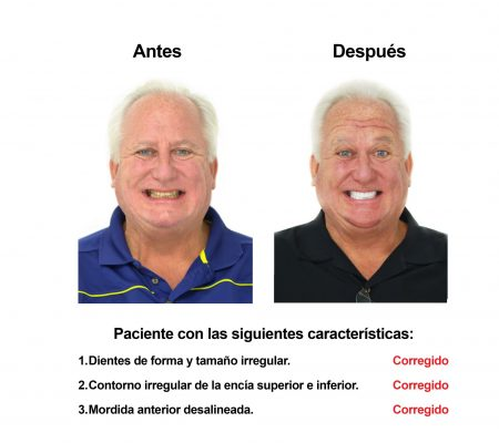 Estetica Dental Smiles Peru Carillas (4)