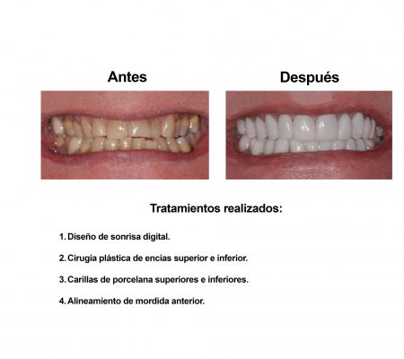 Estetica Dental Smiles Peru Carillas (6)
