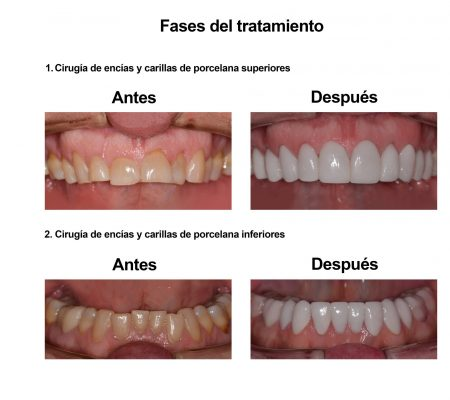 Estetica Dental Smiles Peru Carillas (7)