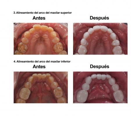 Estetica Dental Smiles Peru Carillas (8)