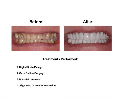 Porcelain Veneers Smiles Peru Cosmetic Dentistry (1)