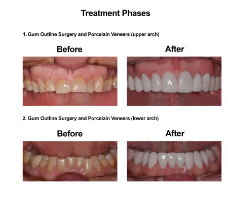 Porcelain Veneers Smiles Peru Cosmetic Dentistry (2)