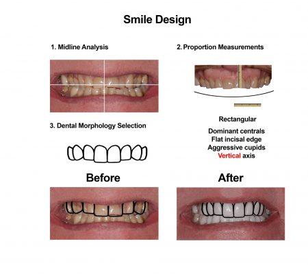 Porcelain Veneers Smiles Peru Cosmetic Dentistry (3)