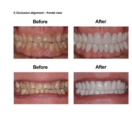 Porcelain Veneers Smiles Peru Cosmetic Dentistry (5)