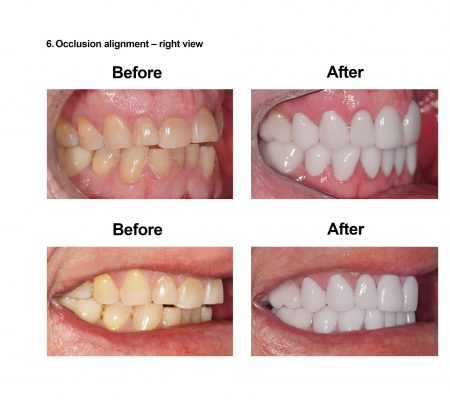 Porcelain Veneers Smiles Peru Cosmetic Dentistry (6)