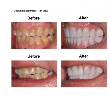 Porcelain Veneers Smiles Peru Cosmetic Dentistry (7)