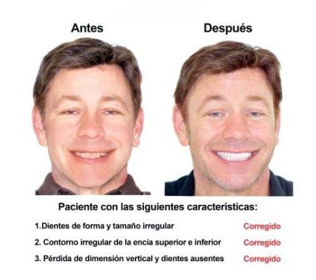 Rehabilitacion Oral e implantes dentales Smiles Peru (1)