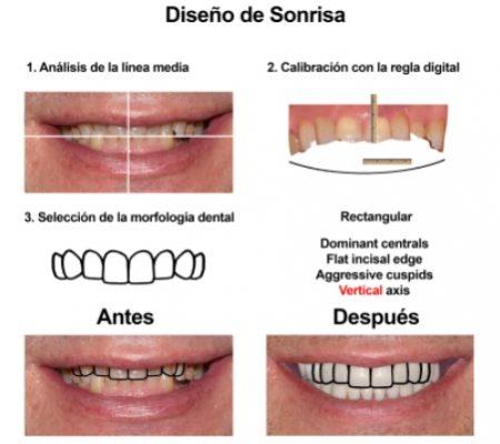 Rehabilitacion Oral e implantes dentales Smiles Peru (2)