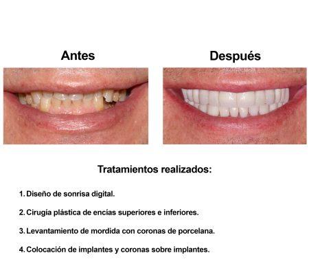 Rehabilitacion Oral e implantes dentales Smiles Peru (3)
