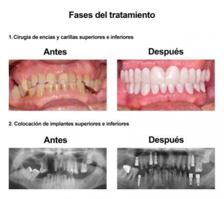 Rehabilitacion Oral e implantes dentales Smiles Peru (4)