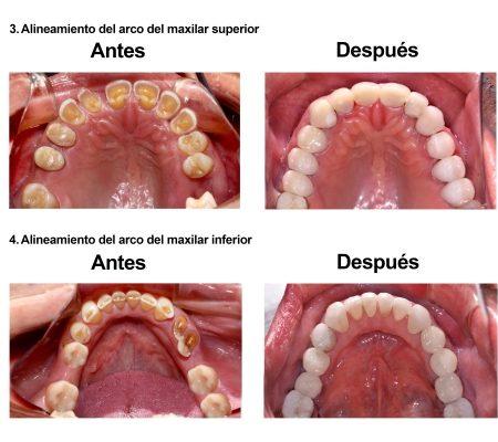 Rehabilitacion Oral e implantes dentales Smiles Peru (5)