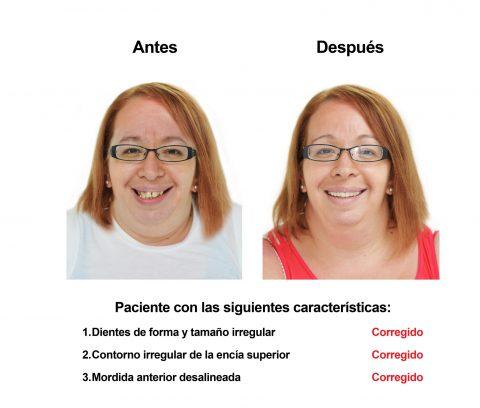Smiles Peru Portofolio Carillas Dentales
