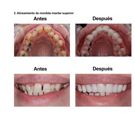 Smiles Peru Portofolio Carillas Dentales (1)