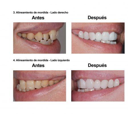 carillas dentales Smiles Peru