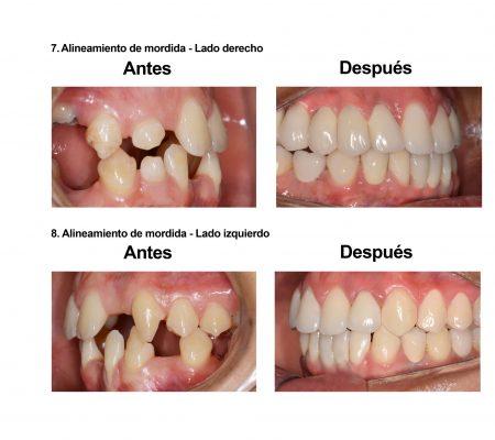 implantes dentales coronas porcelana Smiles Peru (1)