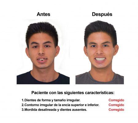 implantes dentales coronas porcelana Smiles Peru (2)