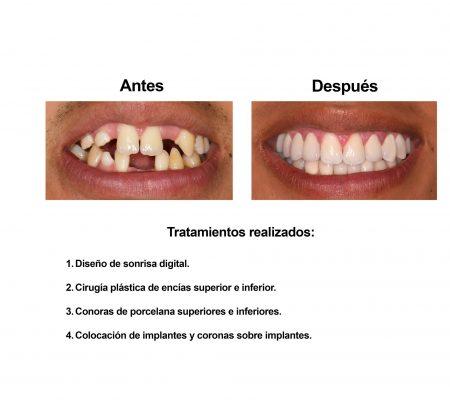 implantes dentales coronas porcelana Smiles Peru (3)
