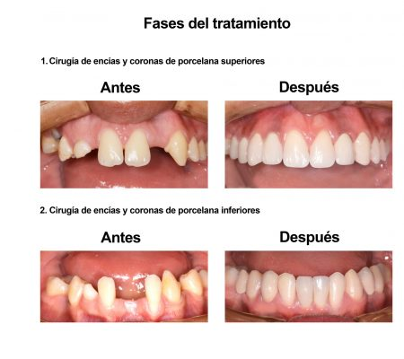 implantes dentales coronas porcelana Smiles Peru (5)