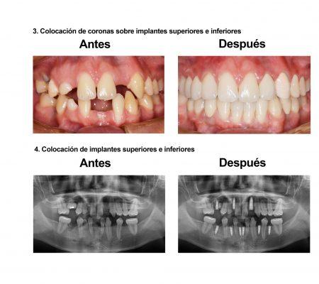 implantes dentales coronas porcelana Smiles Peru (6)