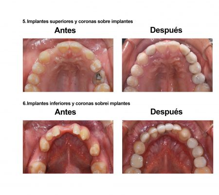 implantes dentales coronas porcelana Smiles Peru (7)