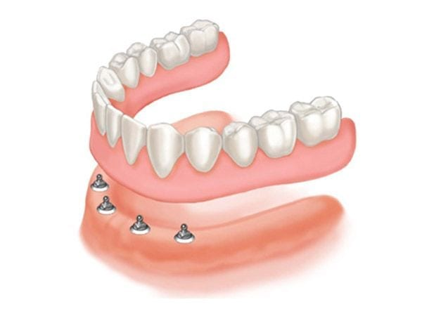 Sobredentadura Ball-retained Dentures Smiles Peru