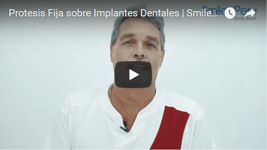 Smiles Peru Dental Testimonial Protesis sobre Implantes