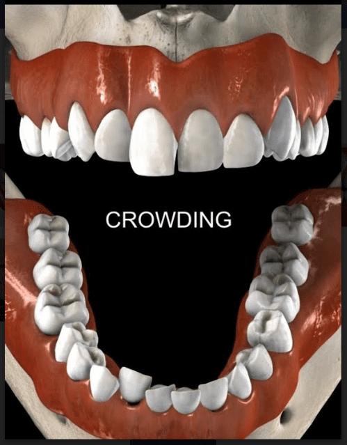 Smiles Peru Ortodoncia Apiñamiento Crowding Dental